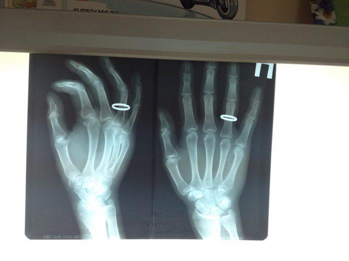 Рентген перелома пальца