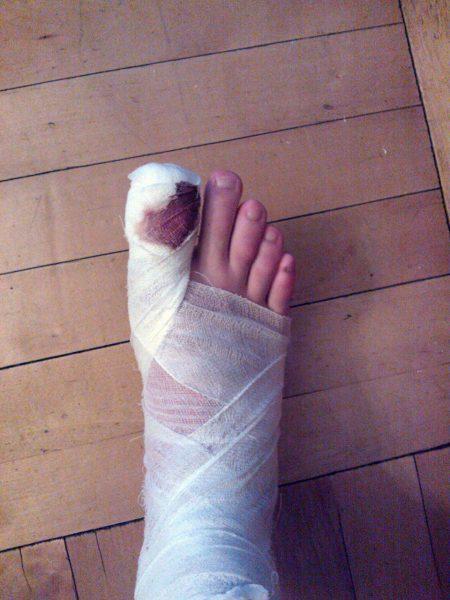 Перебинтованный палец на ноге