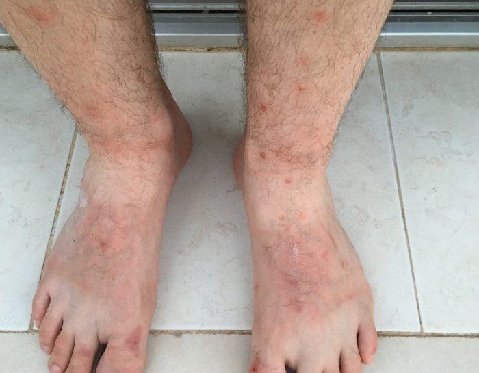 Следы укусов блох на ногах
