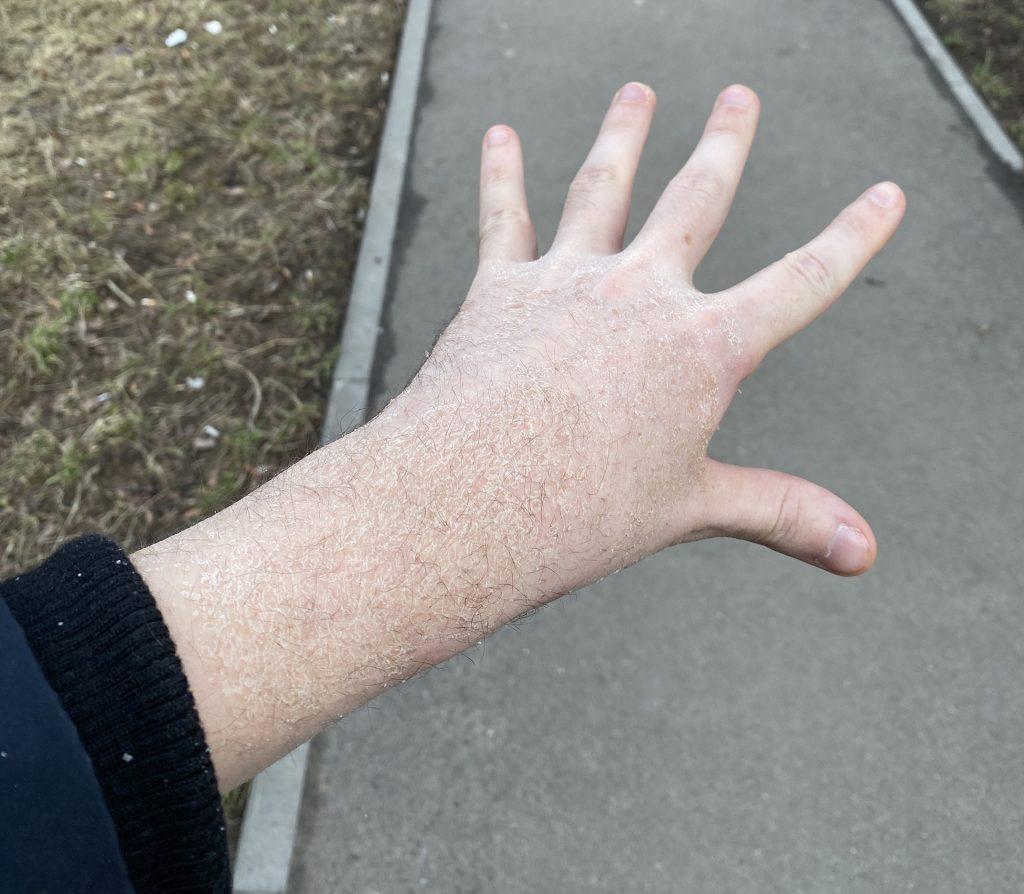 рука с которой сняли гипс